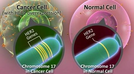 HER2 Overexpresion Breast Cancer normal cell vs cancer cells
